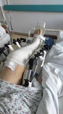 Nemocnica Levice má k dispozícii moderný spôsob pooperačnej liečby kĺbov Motodlahy pomáhajú 100 pacientom ročne